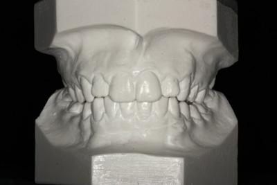 Modele diagnostyczne w ortodoncji