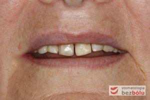 Pacjentka w wieku 65 lat - jasno sprecyzowane oczekiwania dotyczące terapii stomatologicznej