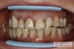 Zęby górne i dolne w zwarciu - pełne łuki - widoczny nieregularny kształt siekaczy górnych, przebarwienia i nawisające wypełnienia