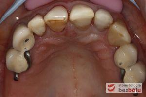 Widok powierzchni zgryzowej zębów w szczęce - zęby sieczne odbudowane kompozytem, przedtrzonowce i kieł pokryte koronami porcelanowymi