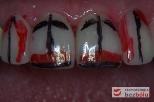 Oznaczanie koniecznych do przeprowadzenia modyfikacji - wyznaczenie osi długich zębów, zasięgu listewek brzeżnych i nadmiaru oraz niedomiaru ceramiki
