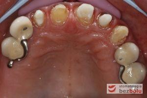 Opracowane filary protetyczne - oszlifowane zęby własne jako filary na których osadzone zostaną finalne korony porcelanowe
