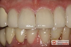 Ostateczna odbudowa protetyczna zębów przednich szczęki - pełnoceramiczne korony po korekcie osadzone na anatomicznych filarach protetycznych