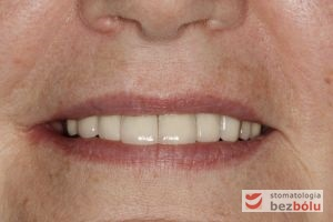 Ostateczny efekt estetyczny - okraszony uśmiechem pacjenta - bezcenne