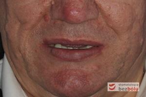 Mężczyzna w wieku 60 lat – pacjent po dwóch zawałach serca, cierpiący na cukrzycę