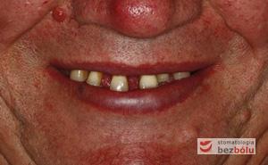Pozytywna przemiana uśmiechu - odbudowa protetyczna na implantach - obraz kliniczny przed terapią stomatologiczną