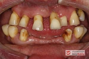 Stan wyjściowy - patologiczne wychylenie zębów górnych, liczne braki zębowe w szczęce i żuchwie, nieproporcjonalnie małe zęby do podstaw kostnych