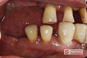 Braki zębowe w strefach bocznych szczęki i żuchwy - widoczne starcie patologiczne na skutek przeciążeń okluzyjnych w odcinku przednim