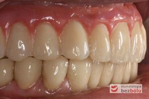 Ostateczny efekt estetyczny wieńczący proces terapeutyczny - odbudowa protetyczna obu łuków zębowych przy zastosowaniu implantów Friadent Ankylos