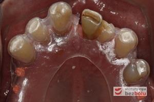 Pozycjonowanie miejsc dla planowanych implantów - opracowanie i umiejscowienie szablonu implantologicznego