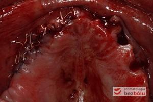 Szczelne zamknięcie rany po stronie prawej - zmobilizowany płat, wolny od naprężeń, zszyty szwami nieresorbowalnymi