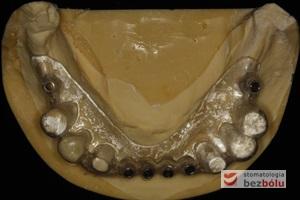 Model gipsowy żuchwy z szablonem chirurgicznym - metalowe tuleje wyznaczają miejsce wprowadzenia wszczepów - widoczne w obrazie RTG