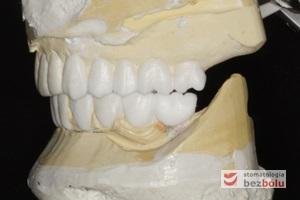 Modele gipsowe z wax-up'em - technik dentystyczny kreuje przyszły kształt zębów za pomocą wosku naniesionego na model