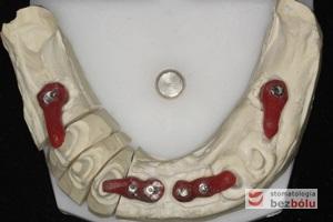 Indywudalizowane filary protetyczne z żywicznymi kluczami - czerwone klucze pattern-resin wyznaczają dokładną pozycję łącznika względem zębów sąsiednich
