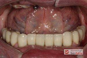 Wprowadzenie gotowych koron na zęby i implanty - śruby łączników tytanowych zamknięte różową gutaperką