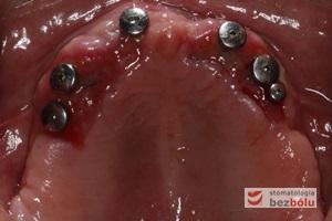 Ekspozycja implantów w szczęce - przesunięcie płata z podniebienia na stronę wargową w celu zwiększenia objętości dziąsła