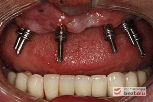 Proces pobierania wycisków - transfery wyciskowe do łyżki otwartej przykręcone do implantów