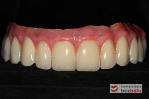 Gotowy most z maską dziąsłową - zastosowanie maski dziąsłowej uzasadnione długością zębów