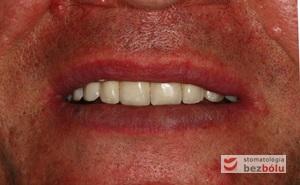 Pozytywna przemiana uśmiechu - odbudowa protetyczna na implantach - obraz kliniczny po terapii stomatologicznej