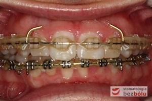 Zastosowanie łuków typu posted oraz retainera wyciągów poziomych w celu retrakcji odcinka przedniego