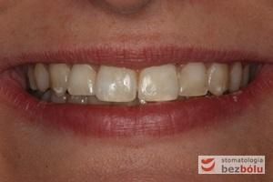 Uśmiech pacjentki zadowolonej z efektów leczenia - leczenie bezekstrakcyjne