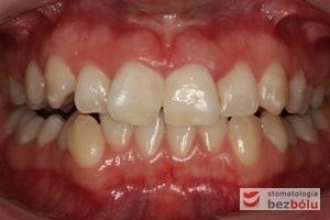 Widok zębów górnych i dolnych w zwarciu od przodu