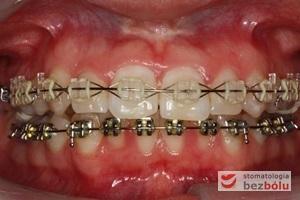 Aktywna faza leczenia z wykorzystaniem kosmetycznych zamków w łuku górnym i standardowych metalowych zamków w łuku dolnym