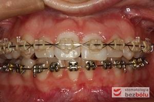 Aktywna faza leczenia z zastosowaniem odpowiedniej sekwencji łuków niti i stalowych