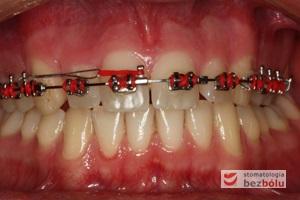 Etap zamykania luki po usuniętym zębie dodatkowym - zastosowana mechanika typu ti-back