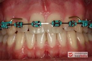 Etap kształtowania łuku i domykania szpar między zębami zastosowany łuk typu posted