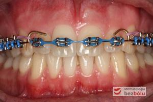 Wykończenie ortodontyczne - finishing