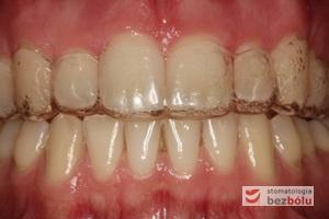 Szyna utrwalająca efekty lecznia osadzona na zębach
