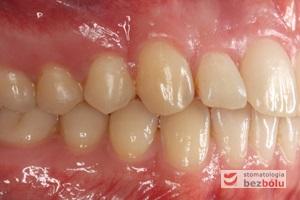 Zęby w zwarciu po leczeniu - strona prawa