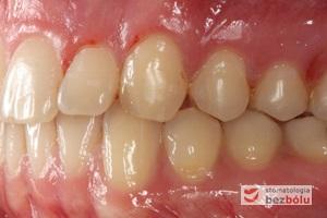 Zęby w zwarciu po leczeniu - strona lewa