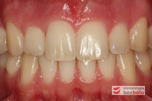 Zęby górne i dolne w zwarciu - efekt po leczeniu