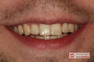 Uśmiech pacjenta po zakończonym leczeniu - rozdzielenie bliźniąt