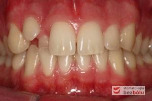 Zęby górne i dolne w zwarciu
