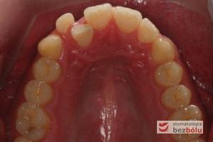 Zęby górne - powierzchnie okluzyjne