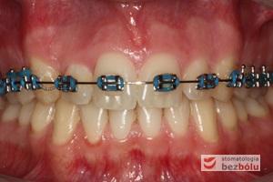 Faza początkowa leczenia ortodontycznego