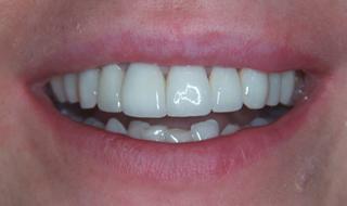 Pozytywna przemiana uśmiechu pacjenta