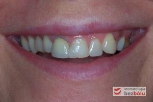 Pacjentka w wieku 35 lat - oczekiwanie poprawy estetyki górnego łuku zębowego wad zębowych