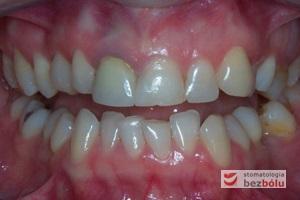 Stan wyjściowy w obu łukach zębowych - widoczne przesunięcie linii pośrodkowej w szczęce w stronę prawą