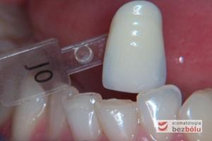 Dobór koloru przyszłych koron - dobór koloru do zębów przeciwstawnych i sąsiednich oraz oczekiwań pacjentki
