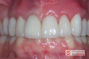 Ostateczny efekt terapeutyczny - widoczna poprawa efektu estetycznego przy jednoczesnym kamuflażu wad zębów