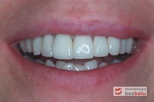 Pozytywna przemiana uśmiechu - ostateczny efekt