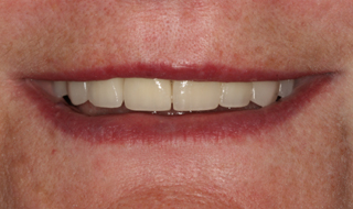 Pozytywna przemiana uśmiechu - protetyczny most porcelanowy na metalu w szczęce