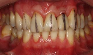 Wyznaczenie osi długich zębów w szczęce - implantoprotetyczne leczenie braków zębowych
