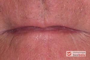 Dolny odcinek twarzy bezzębnego mężczyzny - charakterystyczne dla bezzębia zapadnięcie warg i bruzd nosowo-wargowych oraz policzków