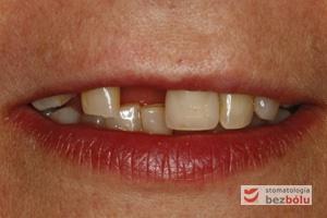 Pacjentka lat 55 o bardzo regularnych rysach twarzy - nieliczne pojedyncze braki zębowe - zachowane zęby zniszczone próchnicą