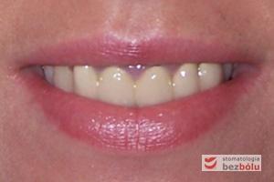 Uśmiech pacjentki przed leczeniem - przekonturowane, żółte i dominujące w strefie szyjek stare, zespolone korony porcelanowe
